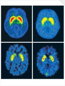 brain-scans1